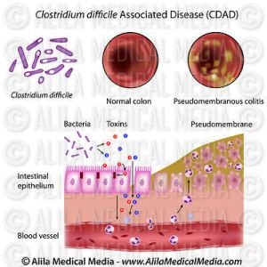 cdad_Clostridium_difficile_medium